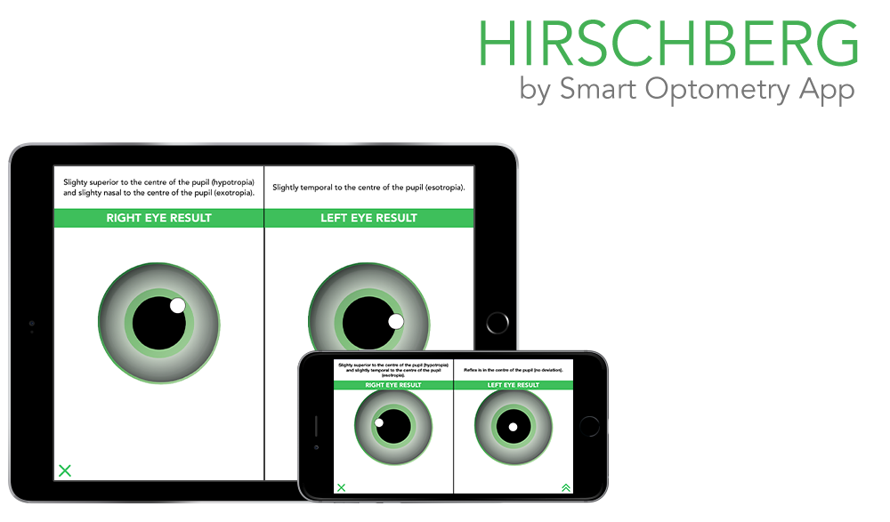 https://smart-optometry.com/wp-content/uploads/2016/08/hirschberg_preview_web-1000x587.png